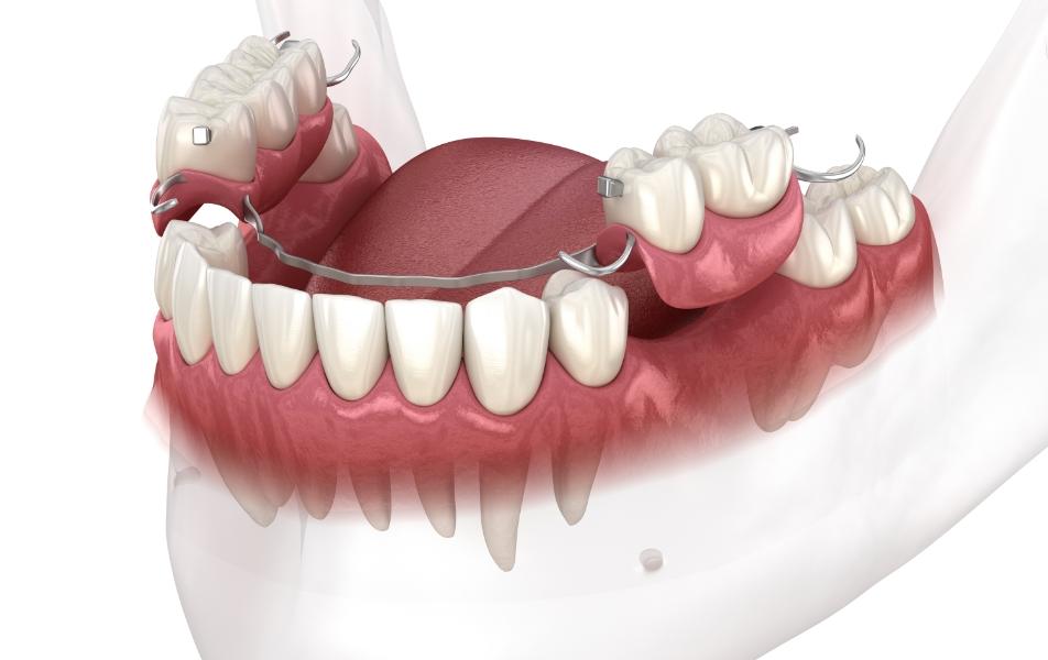 Quelques raisons de la perte des dents