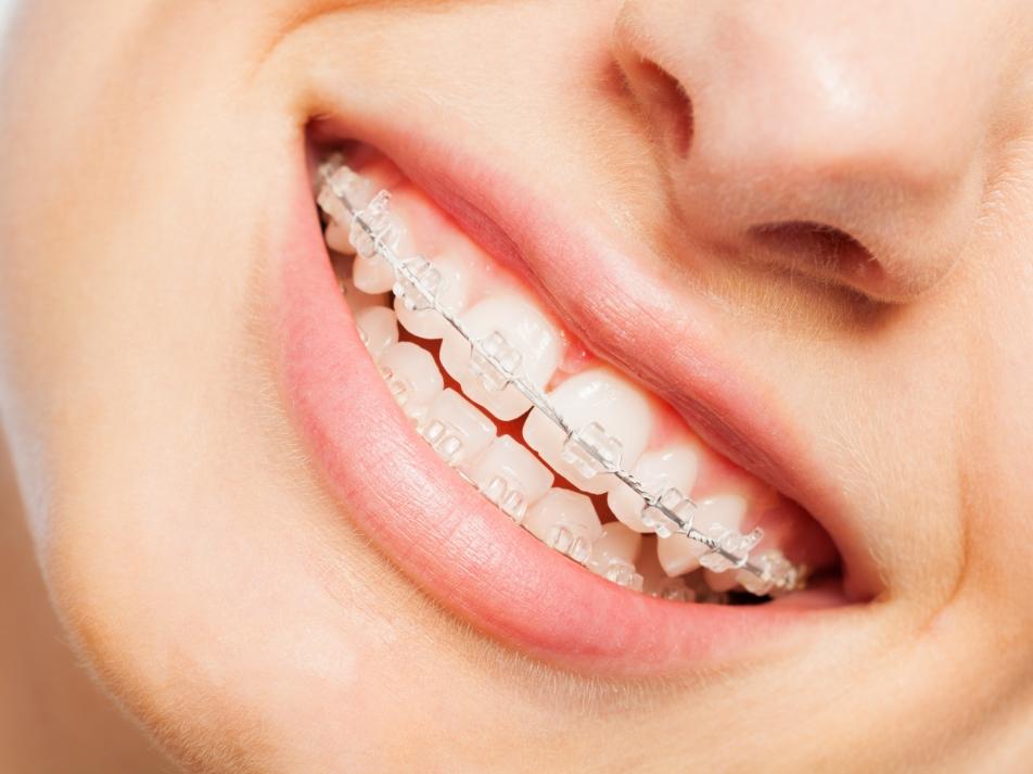 Le déroulement d'un traitement orthodontique